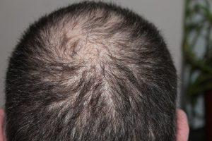 Alopecia androgénica
