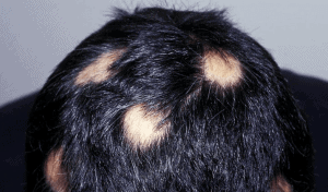 Alopecia patchwork